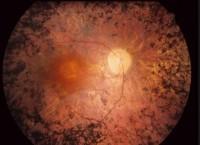 Imágen retina con retinosis pigmentaria